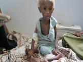 Cerca de 20 milhões de pessoas enfrentam epidemia de fome