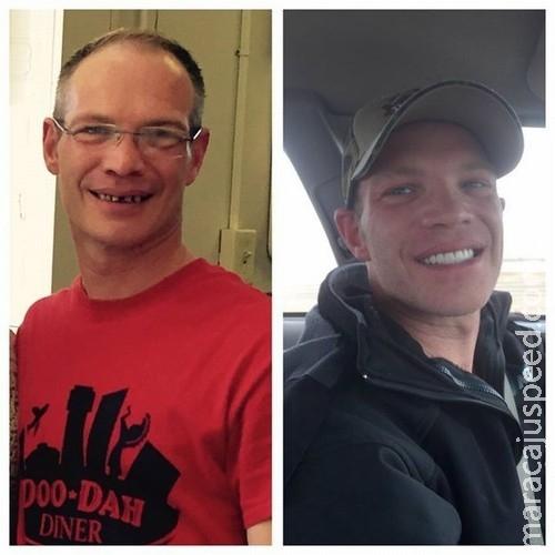 Garçom ganha US$ 25 mil de gorjeta e consegue consertar os dentes