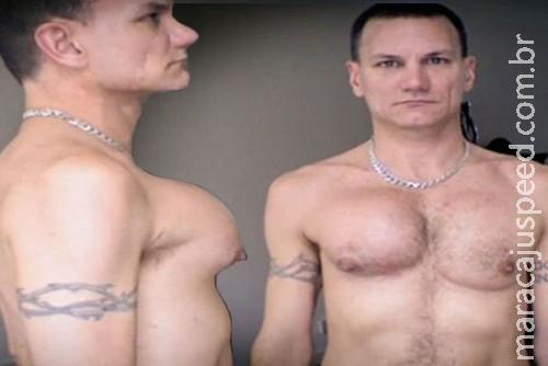 Cirurgia estética dá errado e homem fica com seio