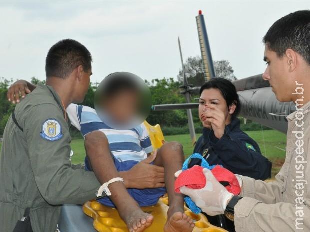 Criança de 10 anos picada por cobra em MS é resgatada por aeronave