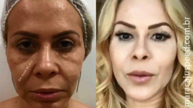 Joelma mostra antes e depois de harmonização facial e choca fãs