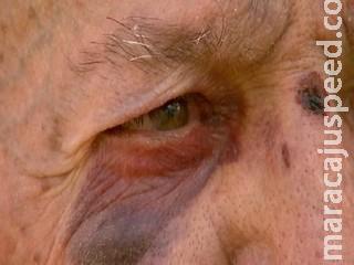 Pai nega bebidas para filho e tem nariz quebrado durante espancamento