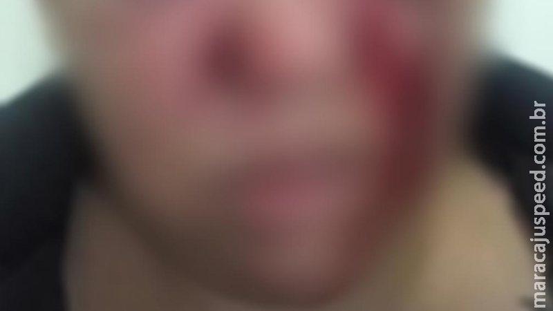 Compressor estoura durante calibragem e borracheiro é socorrido com hemorragia no rosto em MS